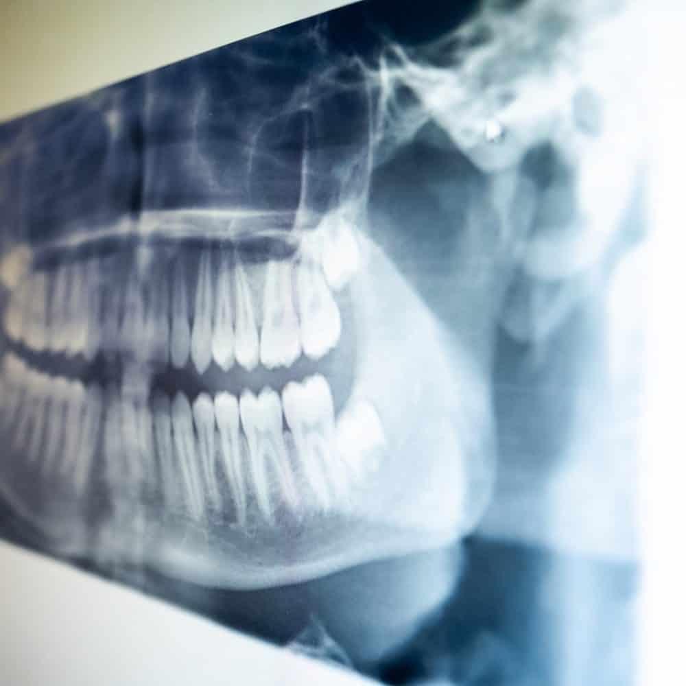 Random Reuland Orthodontics 2018 33 1000x1000 - Clear Braces