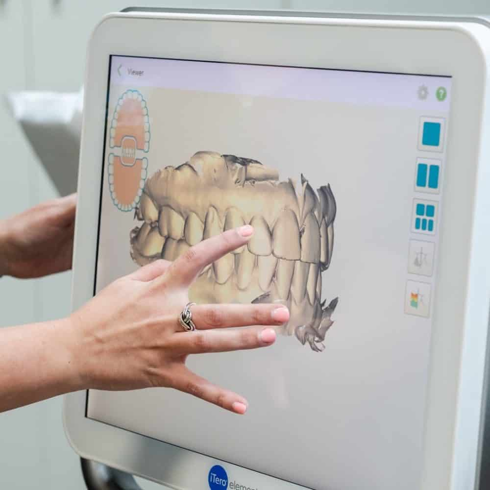 Random Reuland Orthodontics 2018 42 1000x1000 - Invisalign and Invisalign Teen