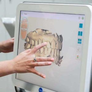 Random Reuland Orthodontics 2018 43 300x300 - Meet the iTero Scanner