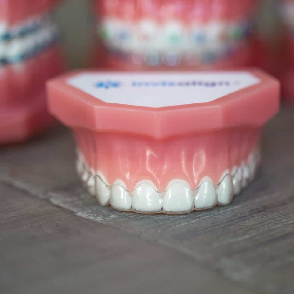 Reuland Orthodontics Treatment Invisalign 3M Clarity Advanced Brackets 2018 10 2 1000x1000 - Invisalign and Invisalign Teen