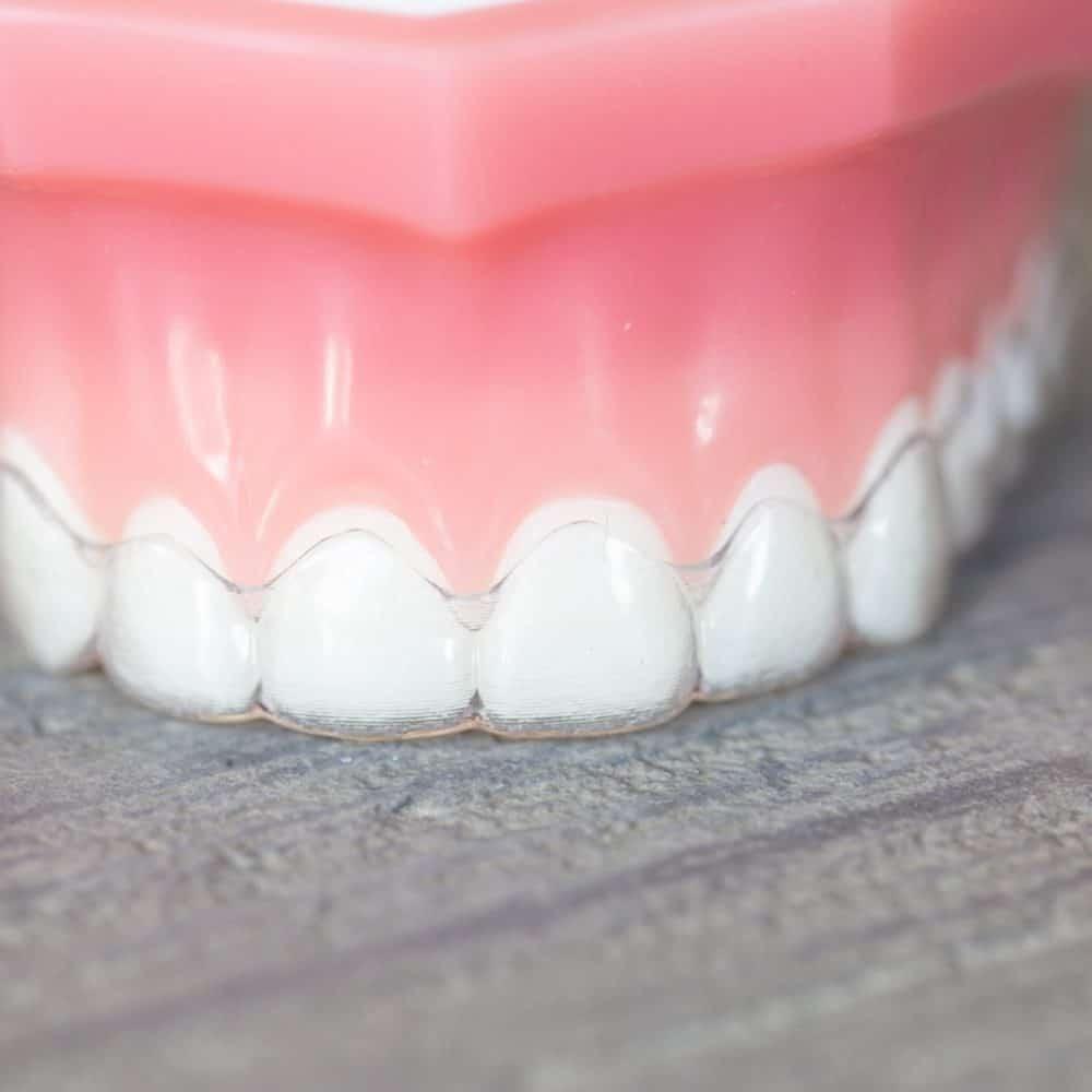 Reuland Orthodontics Treatment Invisalign 3M Clarity Advanced Brackets 2018 4 2 1000x1000 - Invisalign and Invisalign Teen