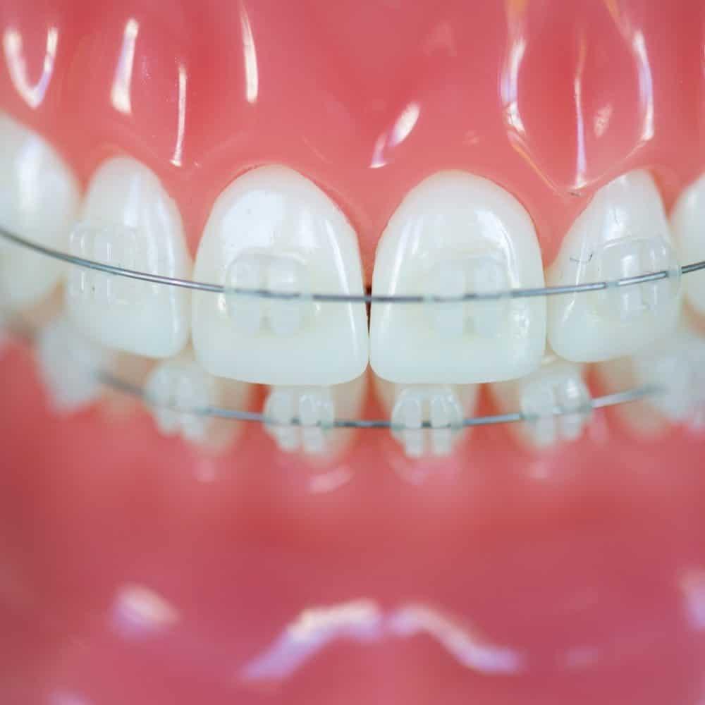 Reuland Orthodontics Treatment Invisalign 3M Clarity Advanced Brackets 2018 7 1000x1000 - Clear Braces