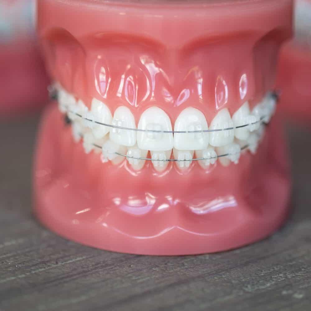 Reuland Orthodontics Treatment Invisalign 3M Clarity Advanced Brackets 2018 8 2 1000x1000 - Clear Braces