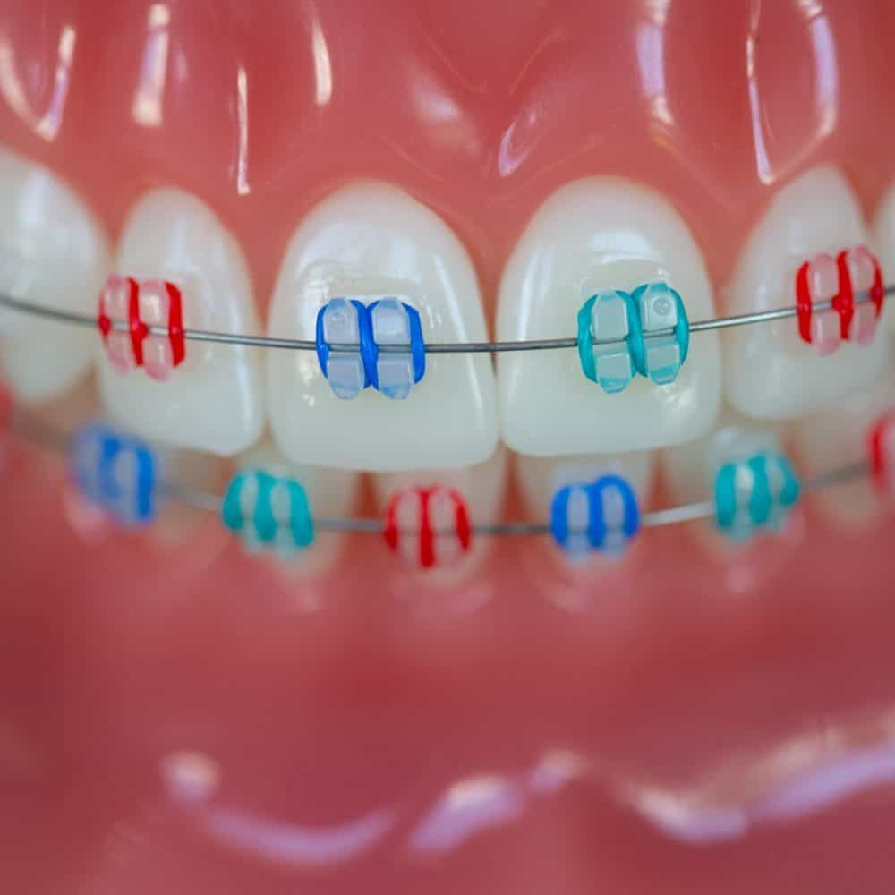 Reuland Orthodontics Treatment Invisalign 3M Clarity Advanced Brackets 2018 9 1000x1000 - Clear Braces