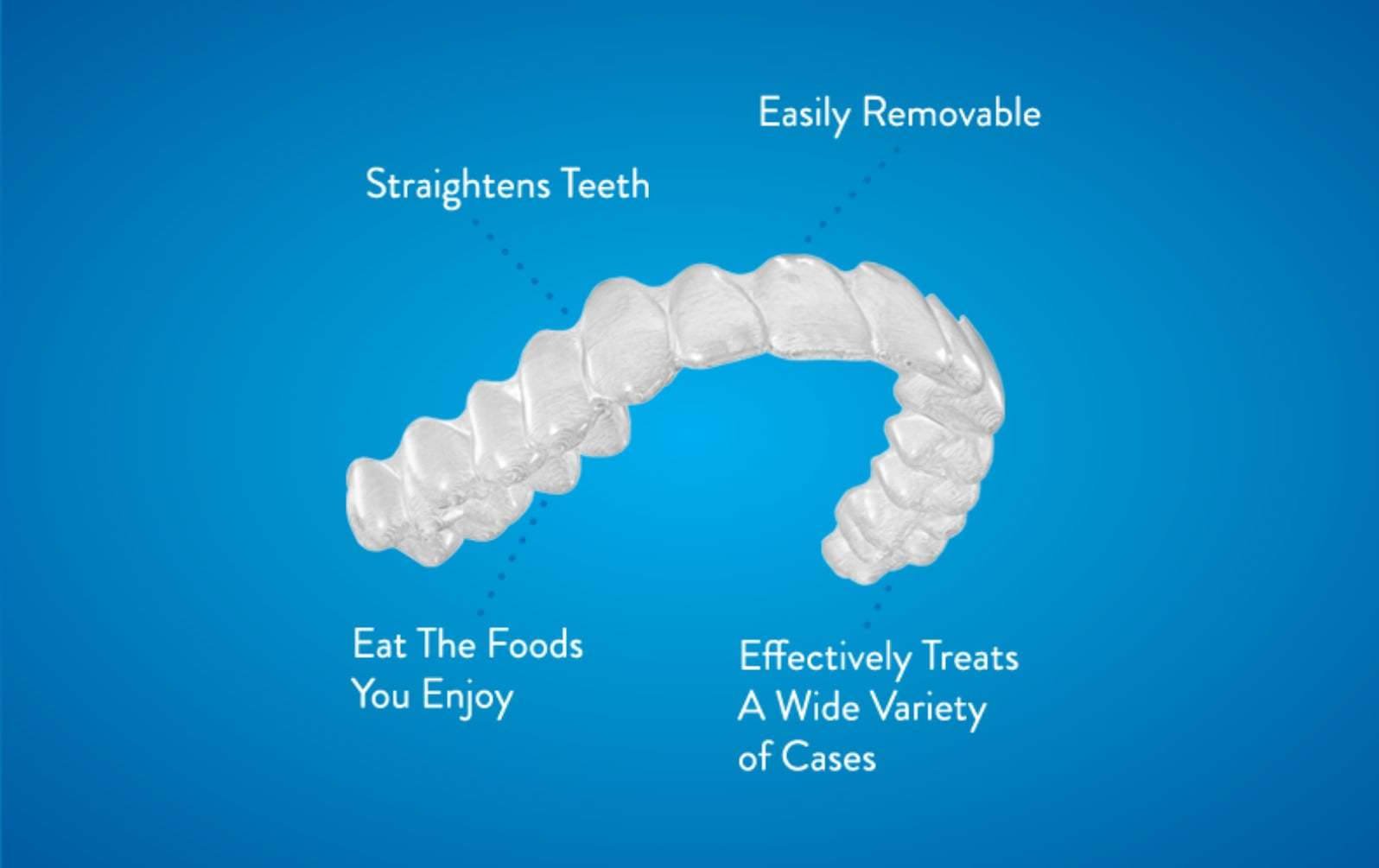 Reuland orthodontics invisalign - Braces for Adults