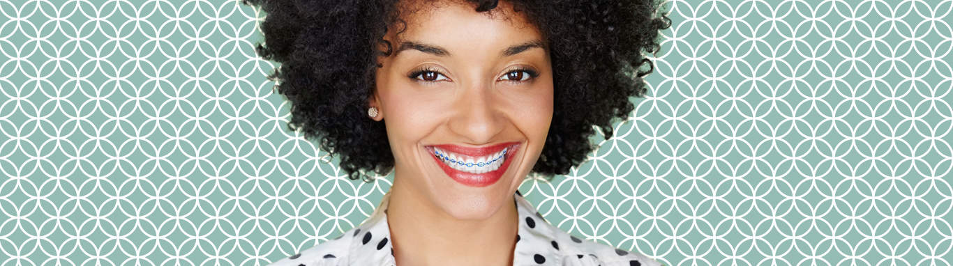 braceson - What is Invisalign?