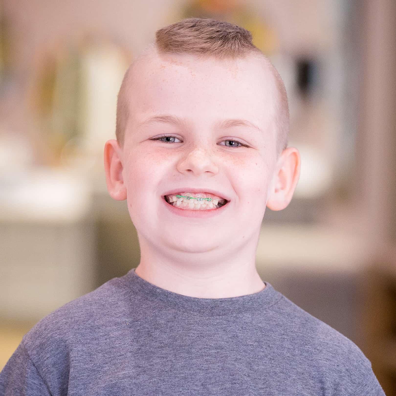 post Patient Portraits Reuland Barnhart Orthodontics Tyler TX 2021 44 10x10 RnB - Our Beautiful Smiles